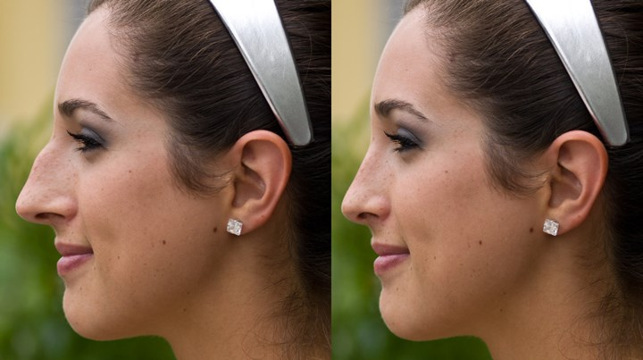 The Secret To Nose Reshaping Without Surgery Non Surgical Rhinoplasty Who Magazine