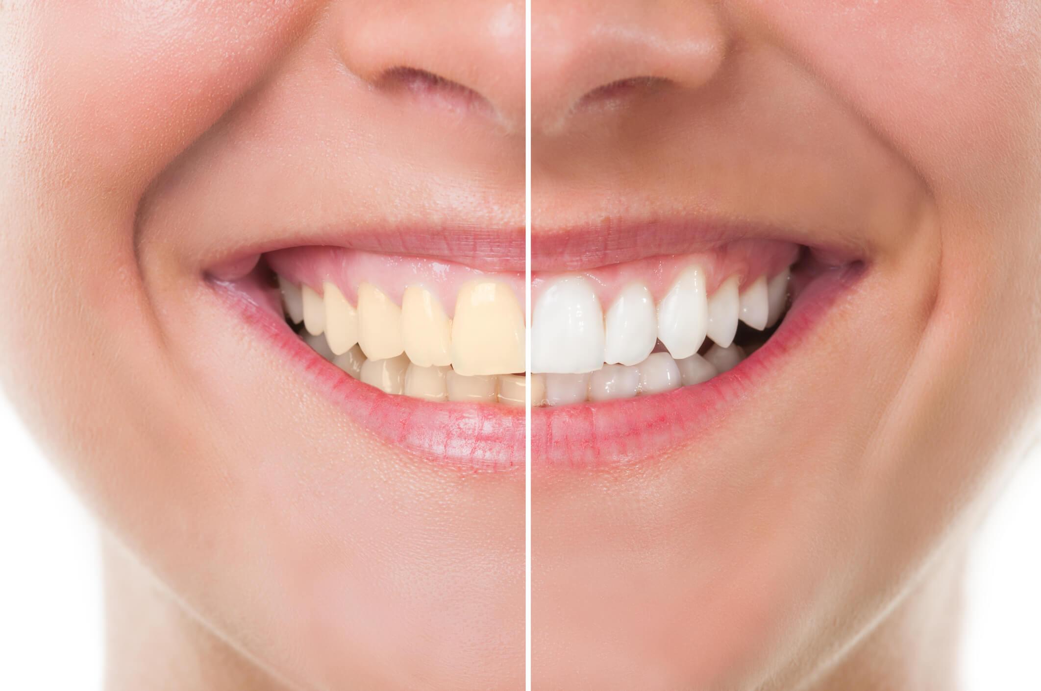 Teeth Whitening Kit 5 Best In Australia Who Magazine