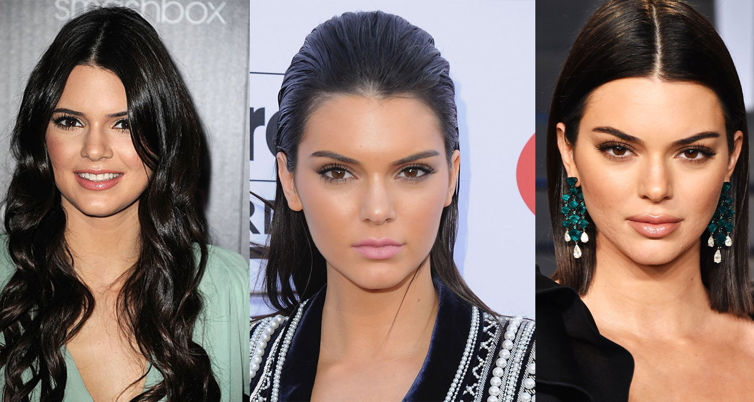 Before and after: Kendall Jenner's face transformation | WHO Magazine
